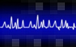 What is an Electrocardiogram ECG test